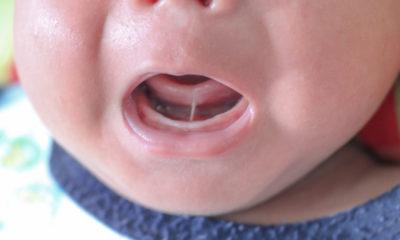Tongue tie pada bayi